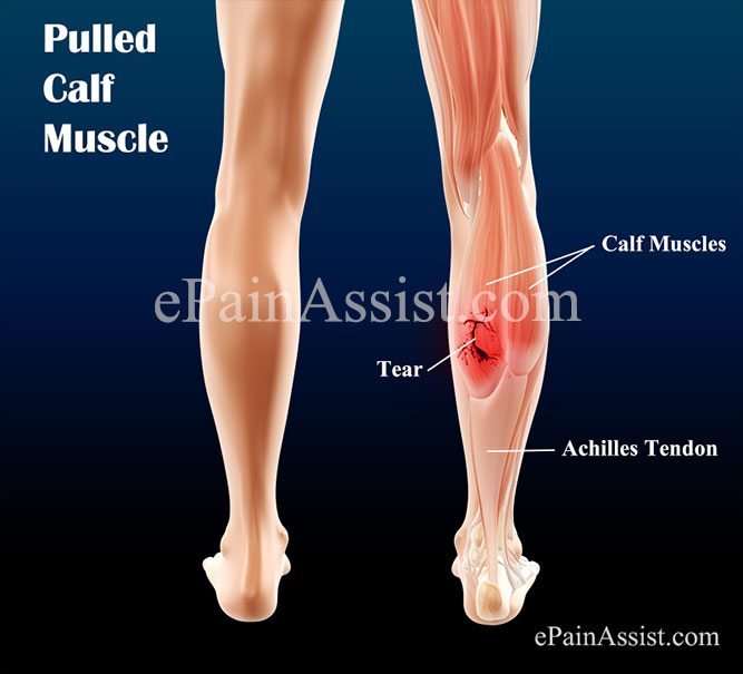 pulled calf muscle|causes, classification, treatment, exercises, Cephalic Vein