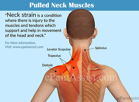 Pulled Neck Muscle or Neck Strain