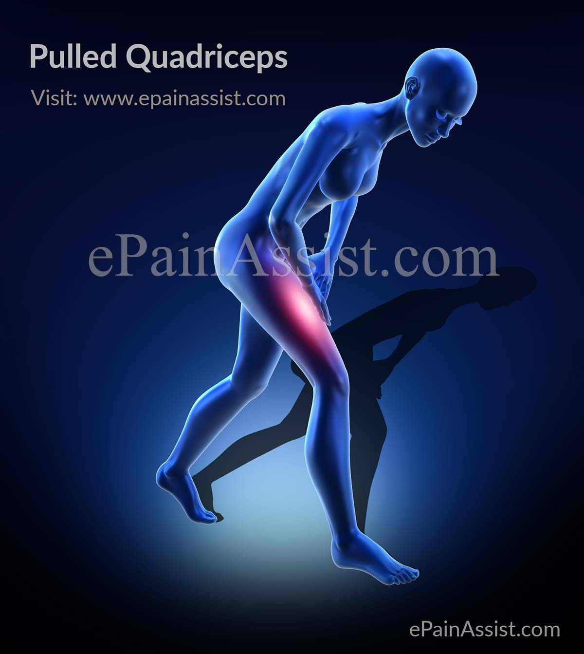Pulled Quadriceps