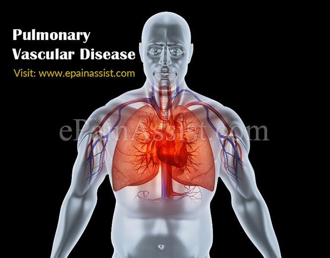 What Is Pulmonary Vascular Disease?