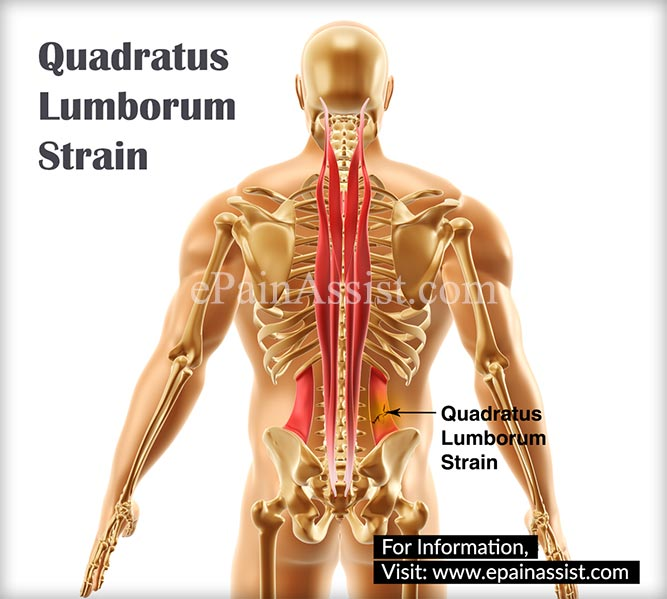 quadratus lumborum straincausessymptomstreatment