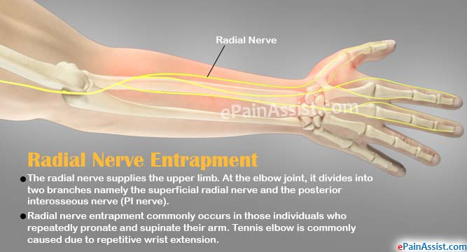 What Is Radial Nerve Entrapment