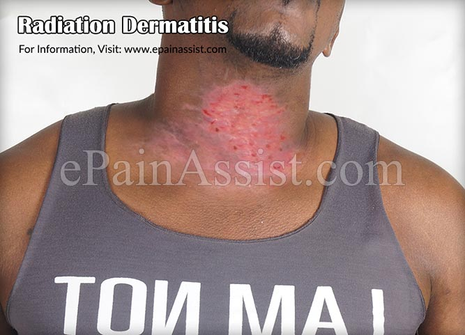 Different Types of Radiation Dermatitis or Radiation Burn