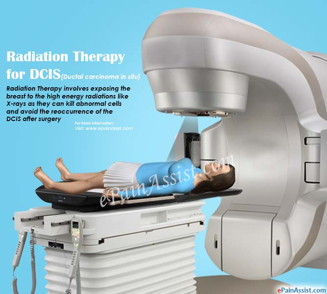 Radiation Therapy for DCIS (Ductal Carcinoma in Situ)