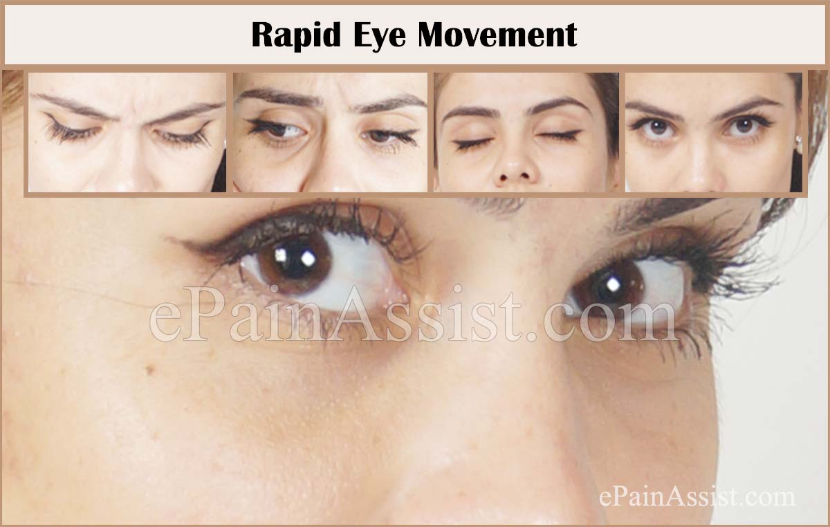 Rapid Eye Movement (REM) Sleep Behavior Disorder
