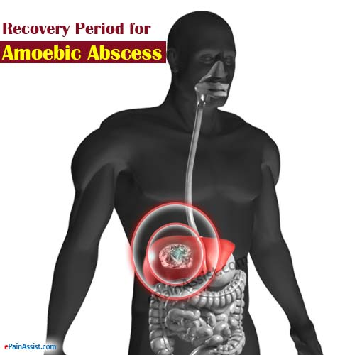 Recovery Period for Amoebic Abscess or Amoebic Liver Abscess