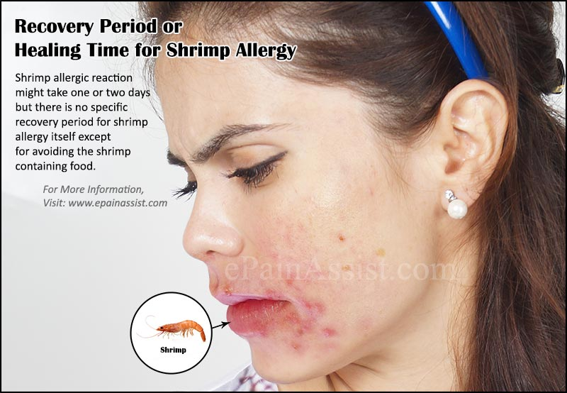 Recovery period prognosis of shrimp allergy for Fish allergy symptoms