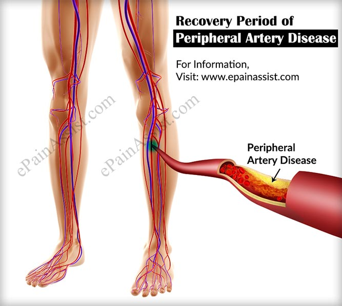 Recovery Period Of Peripheral Artery Disease Its Prognosisdiet