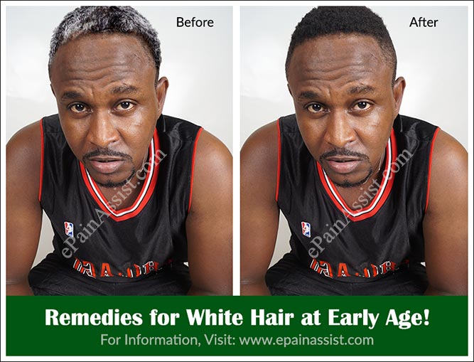 Remedies for White Hair at Early Age!