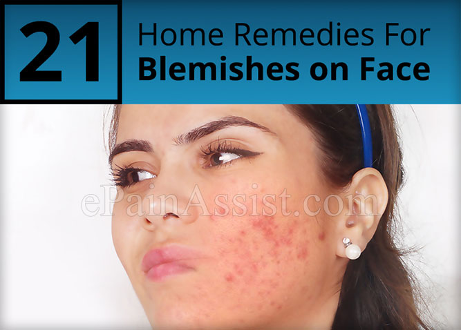 Remove Blemishes on Face with These Home Remedies