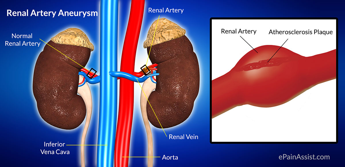 renal artery aneurysm: treatment, causes, types, symptoms, Human body