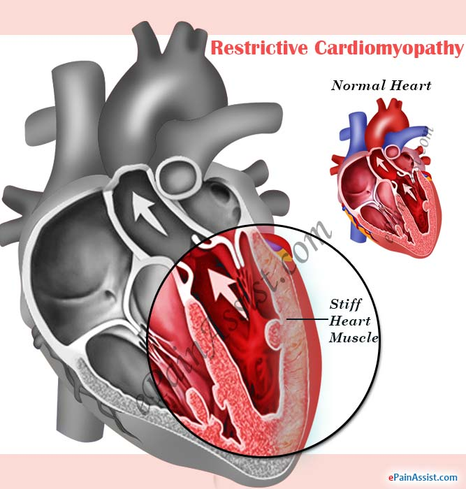 restrictive cardiomyopathy|causes|symptoms|treatment, Skeleton