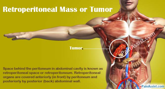 Retroperitoneal Mass or Tumor