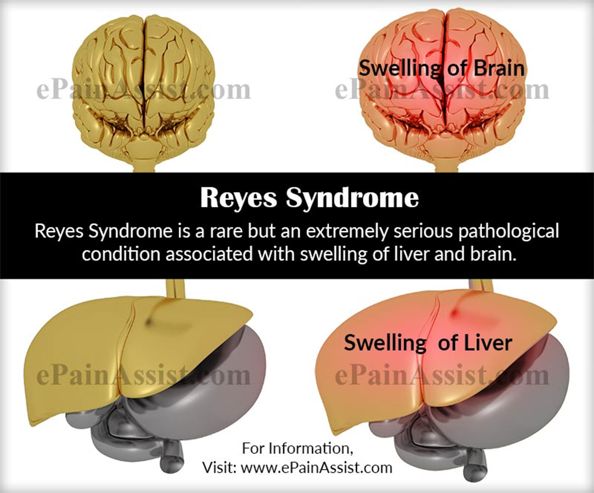 an introduction to the issue of reyes syndrome Reye's syndrome is a rare introduction reye's syndrome is a rare they will be able to give you advice about a variety of practical issues.