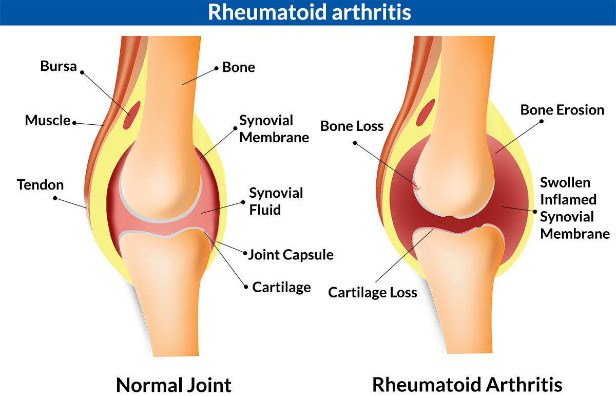 5 major causes of knee joint paininflammation infection injury rheumatoid arthritis of the knee ccuart Images