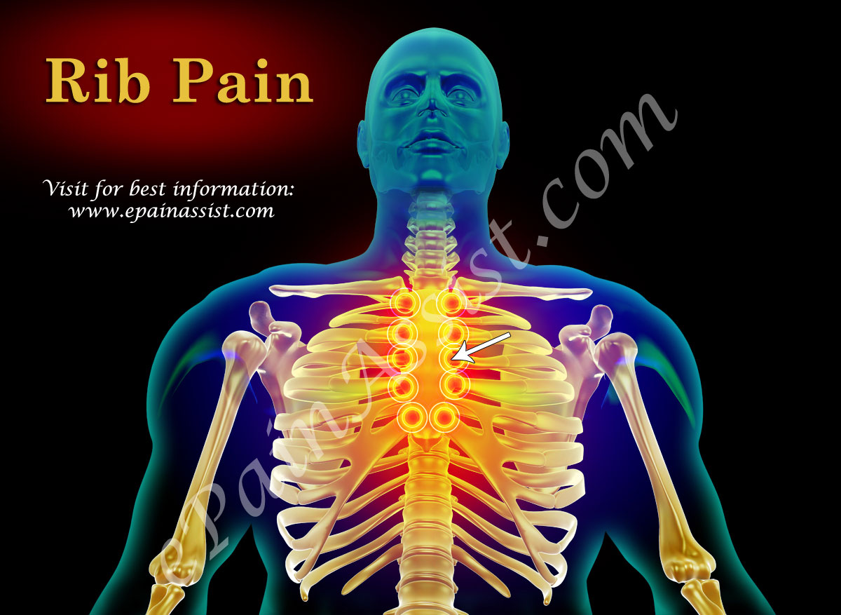 Rib Pain - Picture