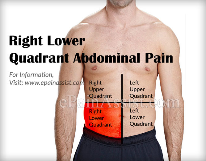 Pain In Lower Right Stomach Area