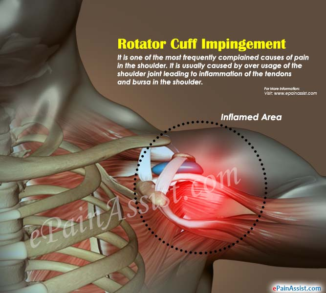 Rotator Cuff Impingement|Symptoms|Causes|Treatment|Prognosis