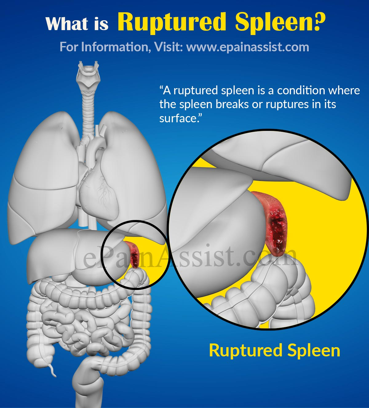 ruptured spleen causes signs symptoms tests treatment