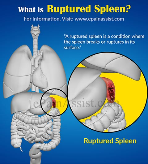 What is Ruptured Spleen?