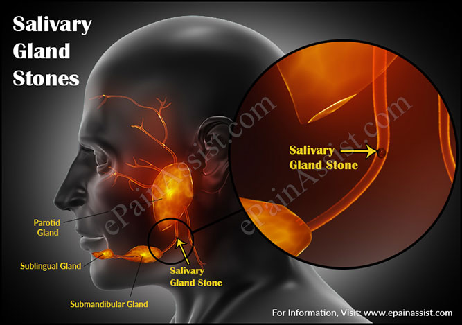 how to get rid of a swollen salivary gland
