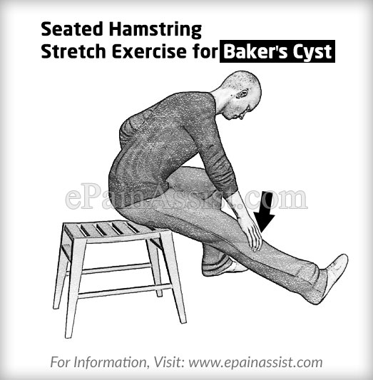 Seated Hamstring Stretch Exercise for Baker's Cyst or Popliteal Cyst