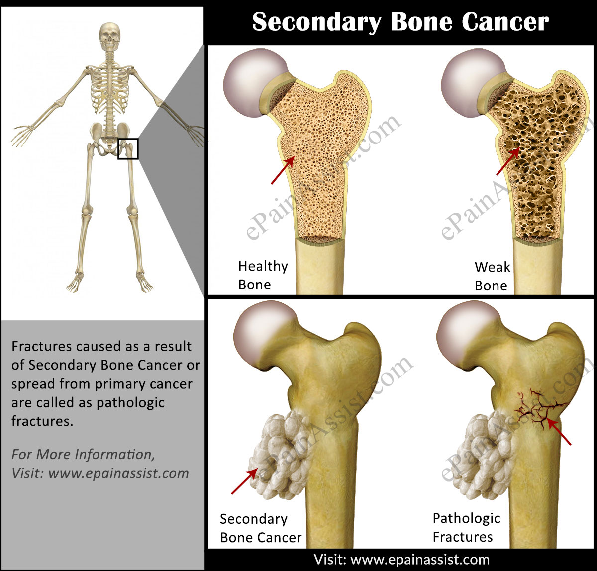 breast cancer secondary bone cancer