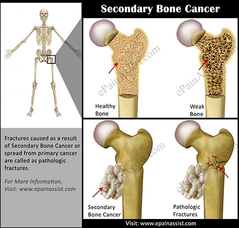 Secondary Bone Cancer