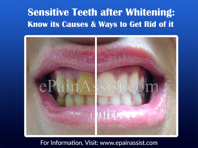 Sensitive Teeth after Whitening: Know its Causes & Ways to Get Rid of it