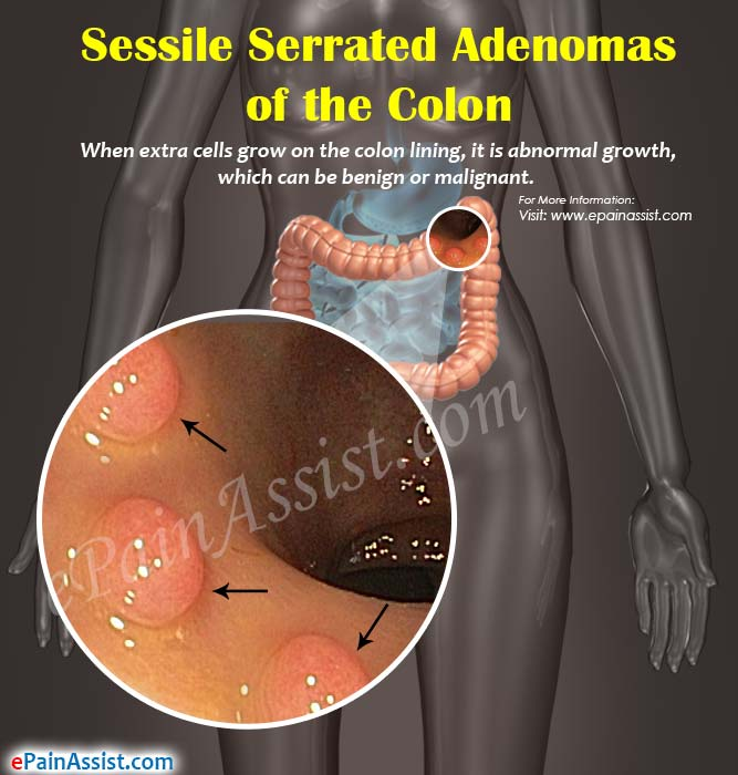 Sessile Serrated Adenoma of the Colon