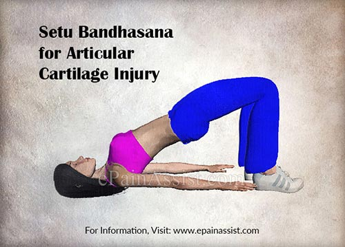Setu Bandhasana for Articular Cartilage Injury