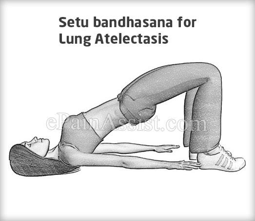 Setu bandhasana for Lung Atelectasis