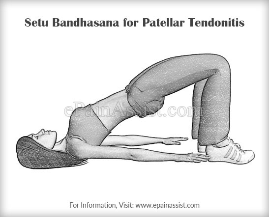 Setu Bandhasana or The Bridge Pose for Patellar Tendonitis
