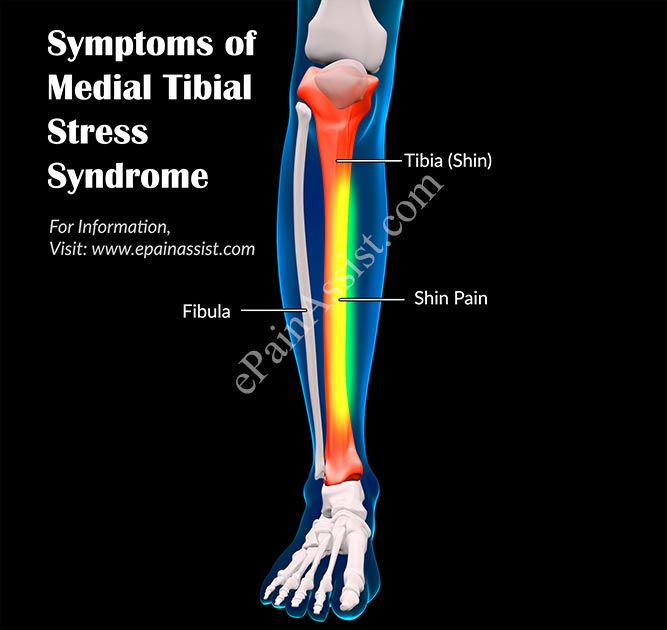 Symptoms of Medial Tibial Stress Syndrome or Shin Splints