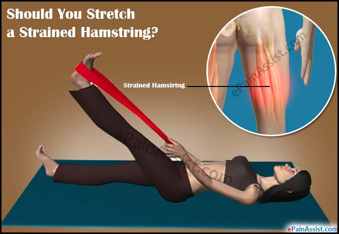 Should You Stretch a Strained Hamstring?