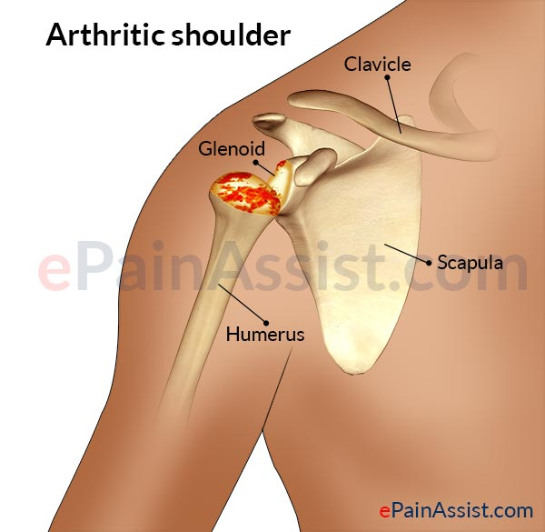 Diagnosis of Shoulder Joint Pain: Symptoms, Physical Exam ...