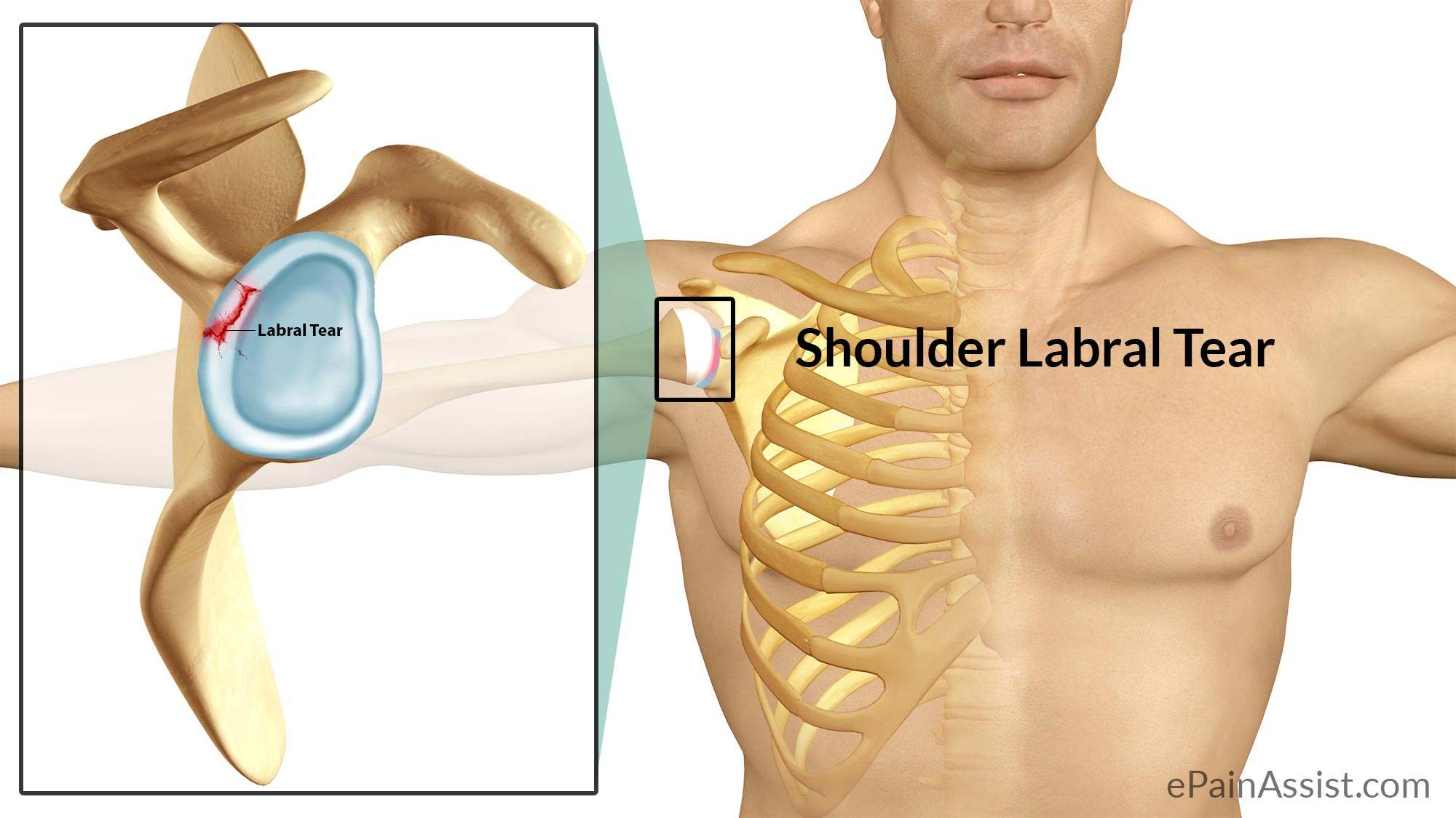 Shoulder Labral Tear Or Shoulder Joint Tear