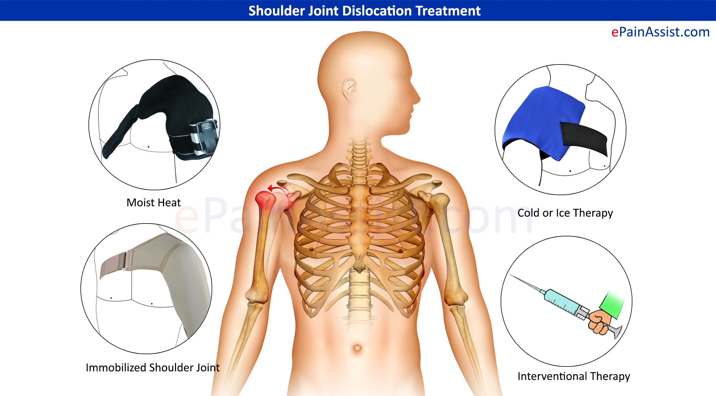 Shoulder Joint Dislocation: Treatment, Symptoms, Signs