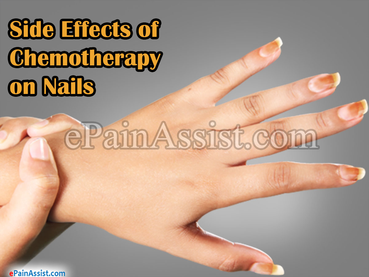 Side Effects of Chemotherapy on Nails