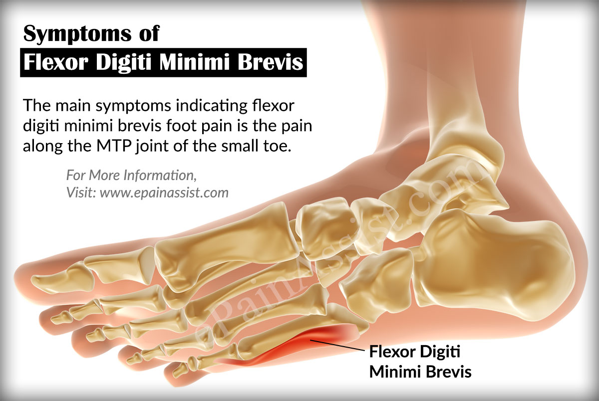 Signs And Symptoms Of Flexor Digiti Minimi Brevis Foot Pain