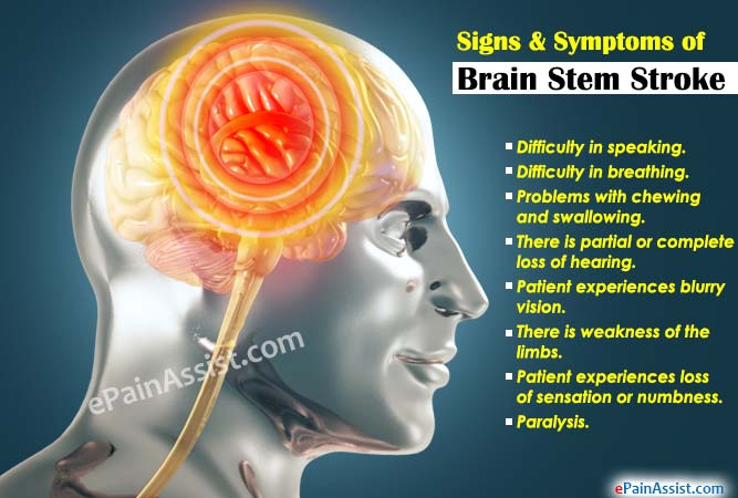 Signs & Symptoms of Brain Stem Stroke