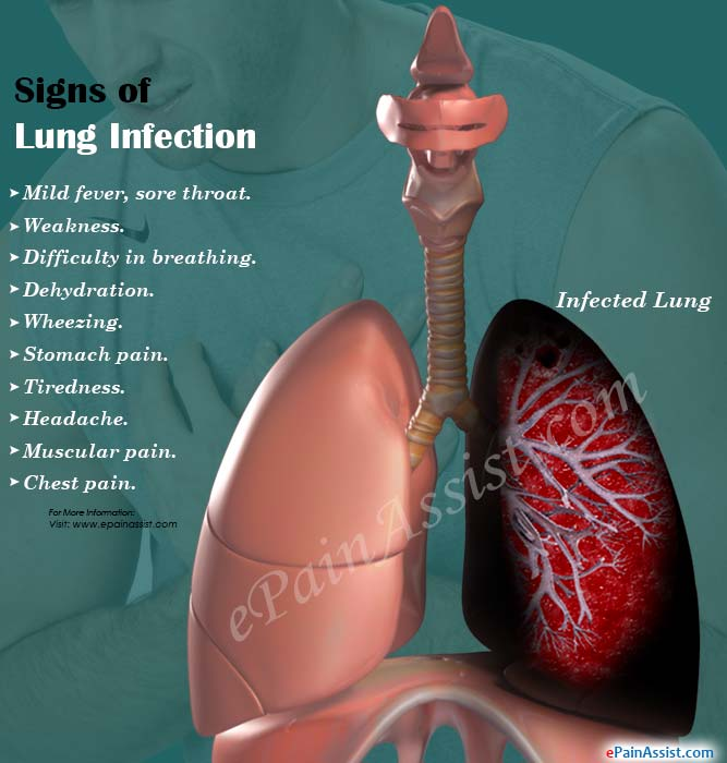 Signs of Lung Infection
