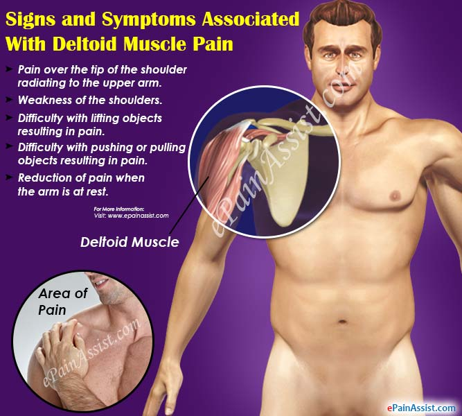 Signs and Symptoms Associated With Deltoid Muscle Pain