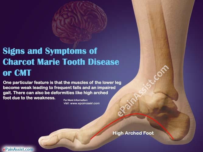 Charcot Marie Tooth Disease or CMT