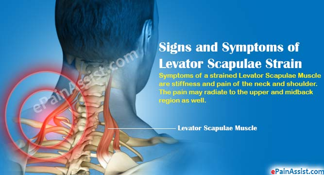 Signs and Symptoms of Levator Scapulae Strain