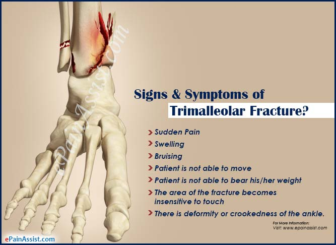 Signs & Symptoms of Trimalleolar Fracture