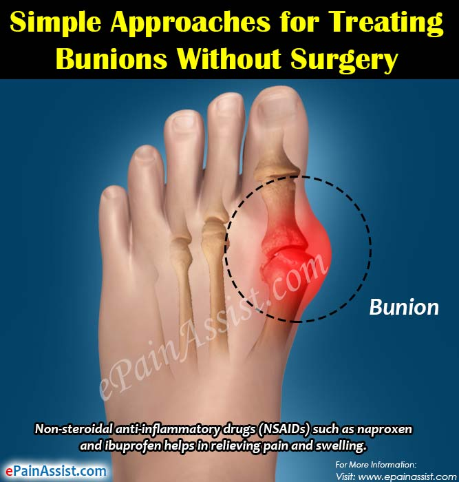 Simple Approaches for Treating Bunions Without Surgery