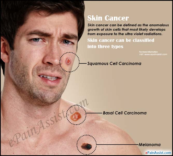 Warning Signs of Skin Cancer & its Early Detection and ...