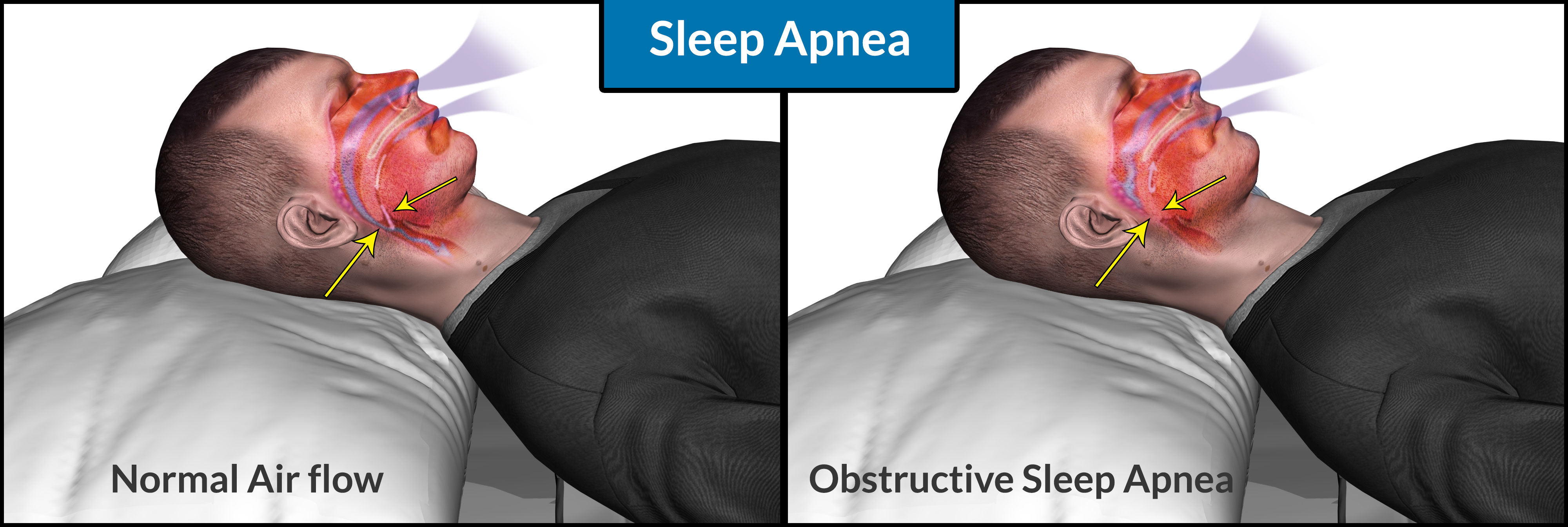 Sleep Apnea: Causes, Symptoms, Dangers, Self Treatment, CPAP Therapy Treatment, Tips