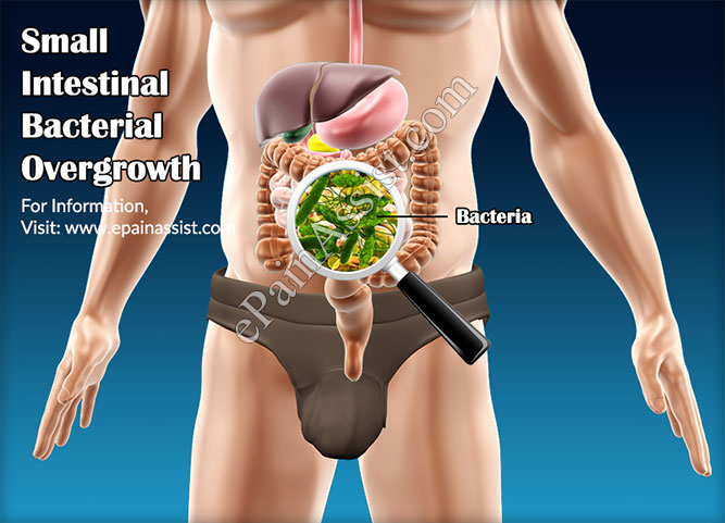 Small Intestinal Bacterial Overgrowth or SIBO